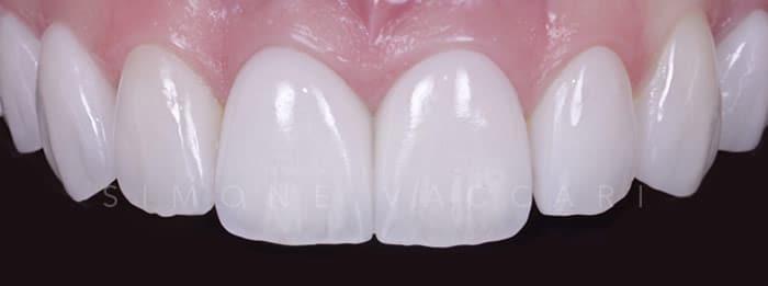 faccette dentali quanto costano