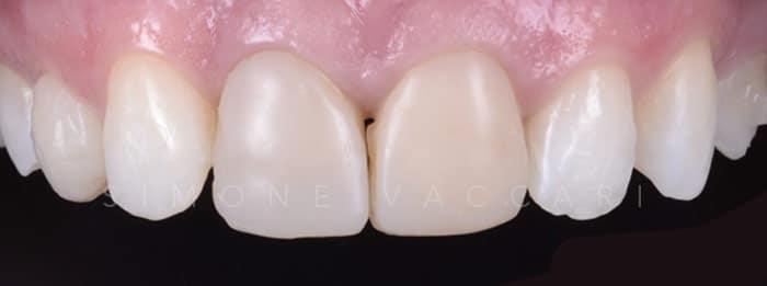 Faccette dentali prezzo
