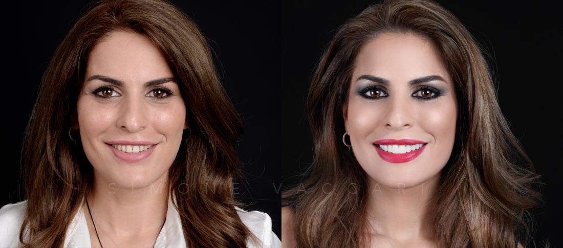 Smile Makeover-Simone-Vaccari-Studio-Dentistico-Odontoiatrico-Specializzato-in-Estetica-Dentale-Faccette-Dentali-Foto-Prima-e-Dopo