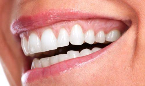Test PSR Parodontite