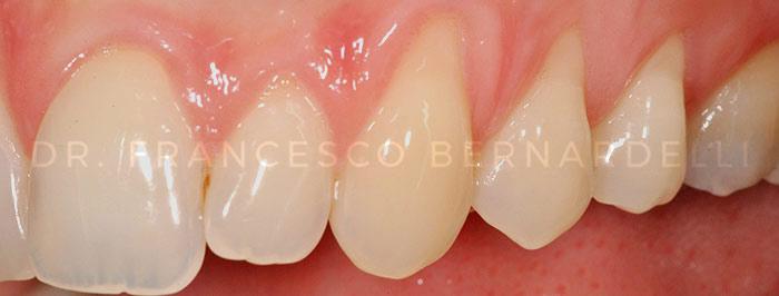 Sintomi Parodontite