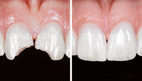 dente rotto prima e dopo