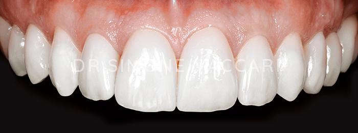 dente scheggiato faccette dentali