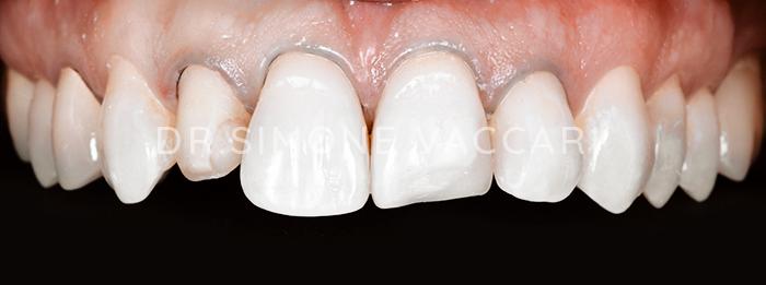 dente rotto faccette dentali